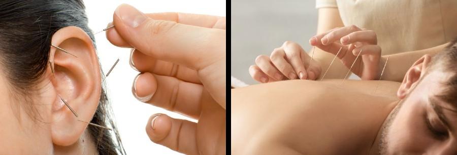 akupunkturutbildning-Stockholm